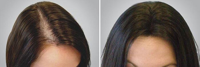 Top 7 thuốc mọc tóc Nhật Bản tốt nhất hiện nay