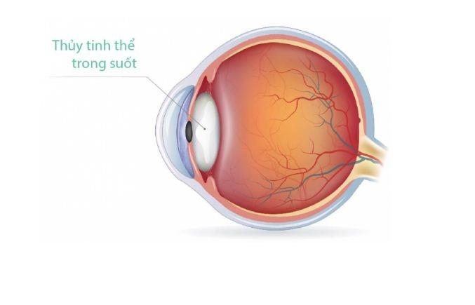 Phương pháp mới giúp những người có bệnh về mắt không phải đeo kính
