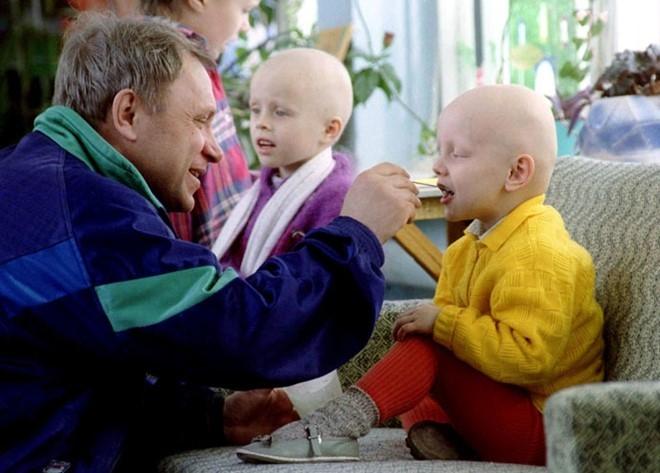 Tia phóng xạ gây dị tật ở trẻ em