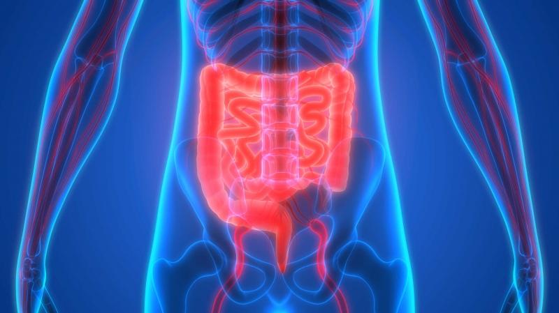 Bệnh crohn làm tăng nguy cơ gây ung thư