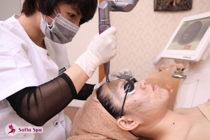 Quá trình điều trị nám tại Sofia Spa