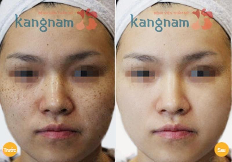 Trước và sau điều trị nám của khách hàng tại Kangnam