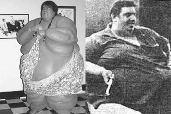 Jon Brower Minnoch ( 1941- 1983) Người nặng nhất thế giới