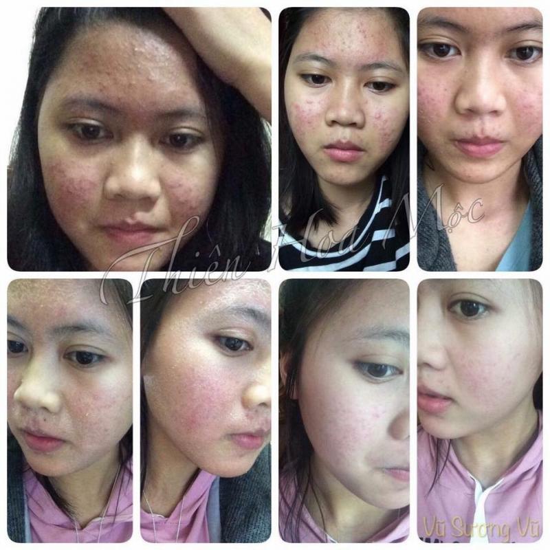 Da mặt mịn màng sau 2 tháng sử dụng Thiên Hoa
