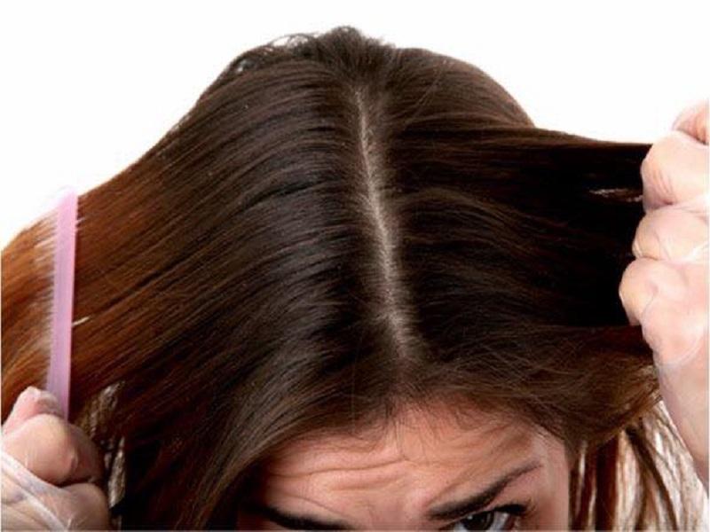 Trị ngứa da đầu