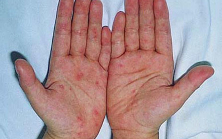 Giai đoạn đỏ tấy của bệnh chàm