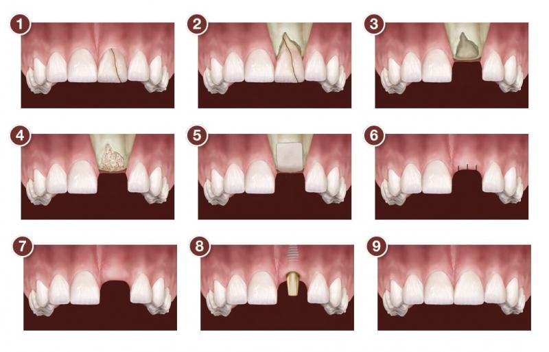 Mô phỏng kỹ thuật cấy xương trong trồng răng Implant
