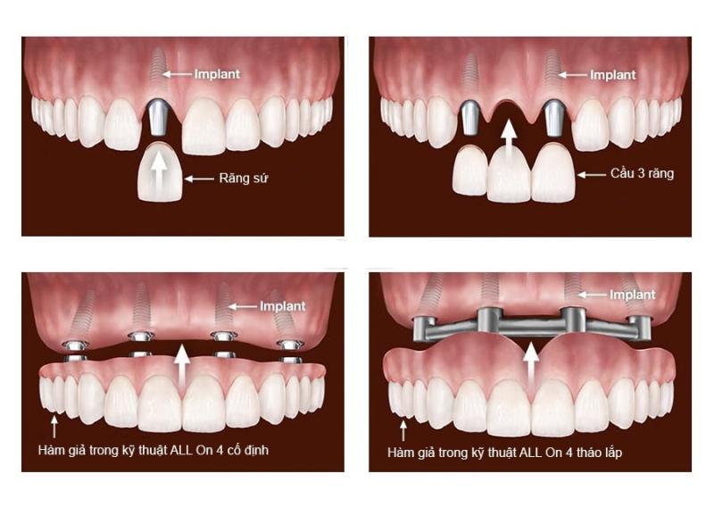 Các dạng phục hình trên Implant