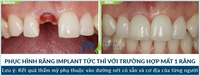 Kết quả sau phục hình răng tại JW