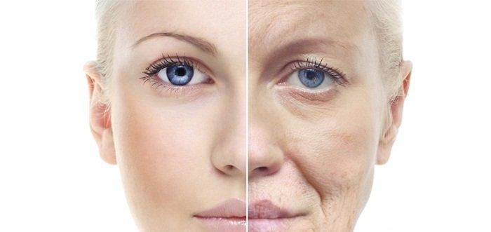 Căng da mặt là công nghệ thẩm mỹ tiên tiến hàng đầu