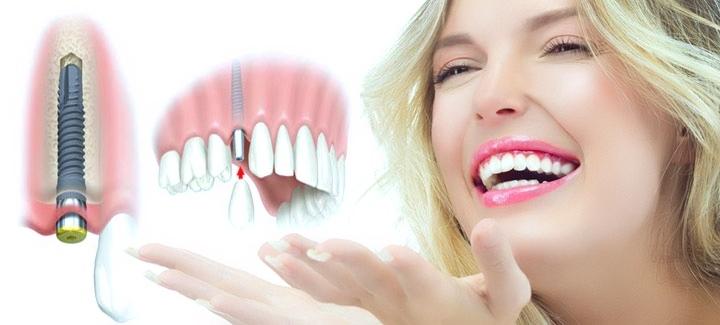 Top 5 trung tâm răng hàm mặt uy tín nhất tại Đà Nẵng