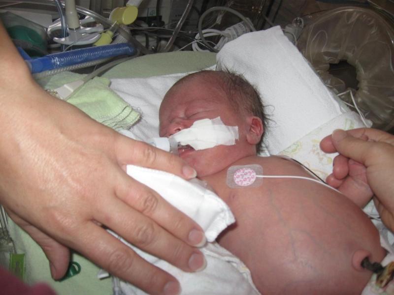 Bệnh trướng bụng ở trẻ