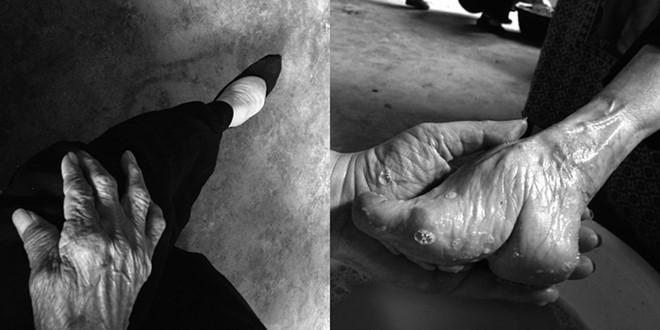 Tàn tích mà tục bó chân gây ra vẫn được tìm thấy ở một số cụ già Trung Quốc