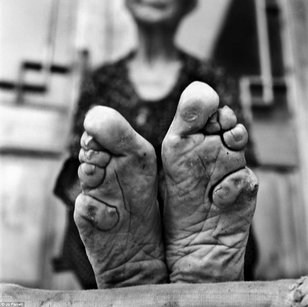 Tục bó chân ở Trung Quốc.