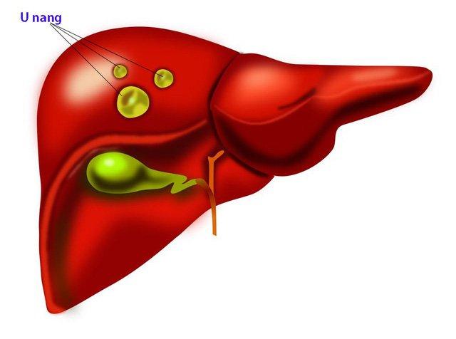 U nang ở gan