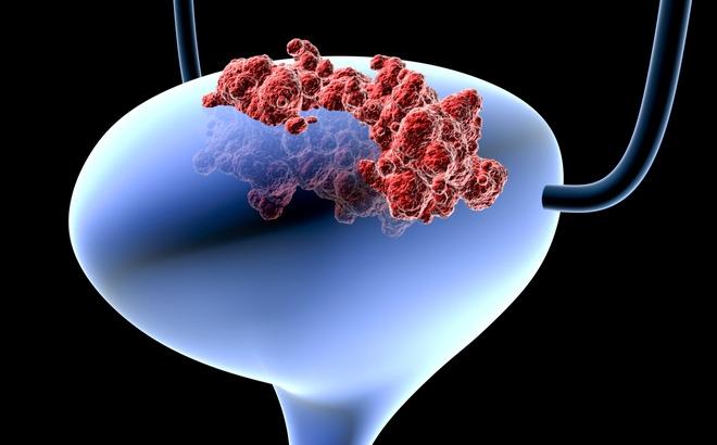 Ung thư bàng quang là một loại ung thư bắt đầu trong bàng quang