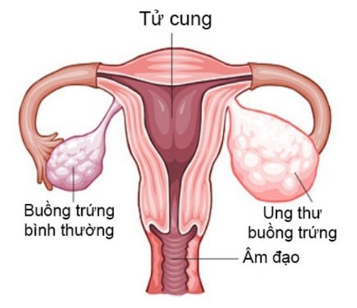 Buồng trứng trái bình thường và buồng trứng phải ung thư