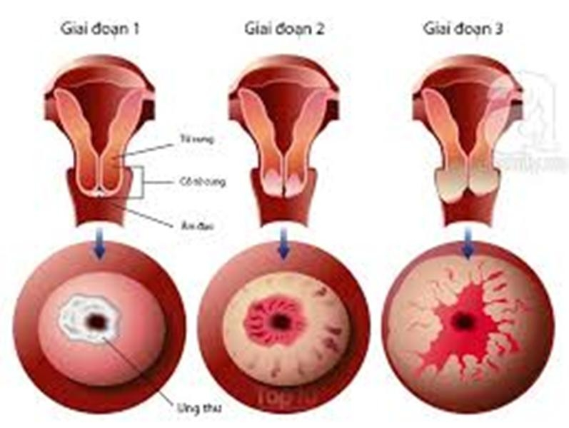 Hình ảnh các giai đoạn của ung thư cổ tử cung