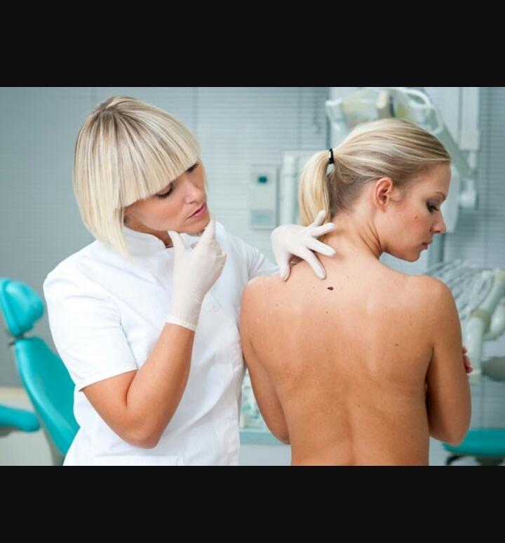 Bác sĩ kiểm tra những bất thường trên da phòng chống ung thư
