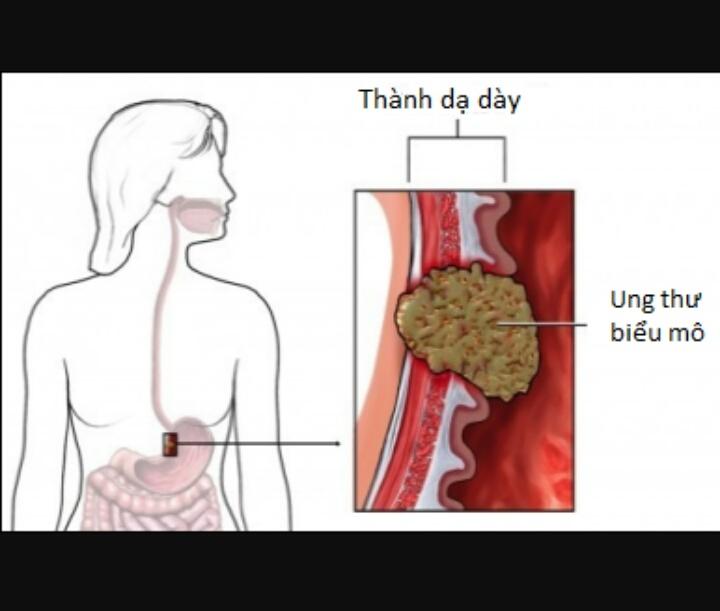 Phụ nữ là đối tượng có nguy cơ cao ung thư dạ dày