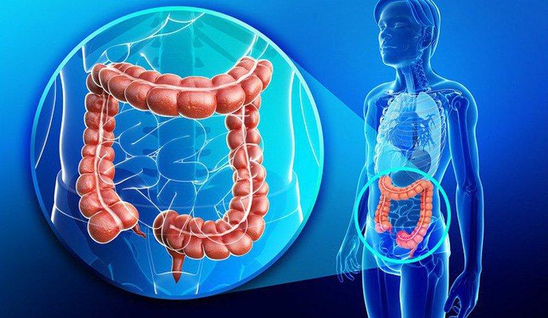 Ung thư đại trực tràng là bệnh ung thư có tỷ lệ tử vong thứ 2, sau ung thư phổi