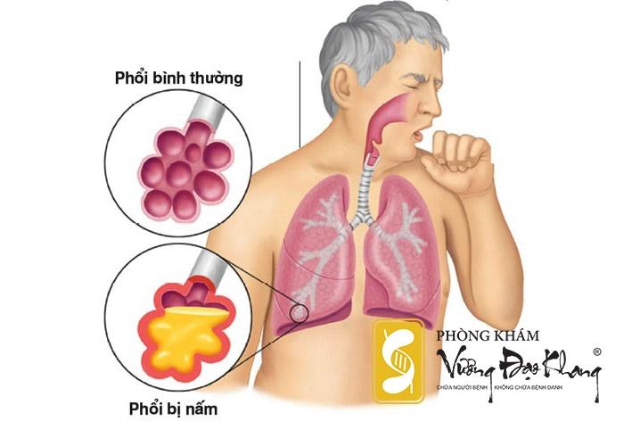 Hút thuốc lá dễ mắc rất nhiều bệnh ung thư đặc biệt là Ung thư phổi.