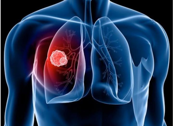 Hầu hết nguyên nhân gây ung thư phổi chủ yếu từ thuốc lá