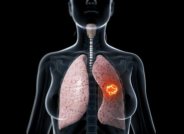 Ung thư phổi là bệnh ung thư phổ biến nhất ảnh hưởng đến cả nam lẫn nữ