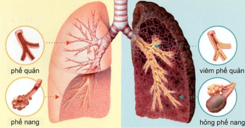 Hình ảnh lá phổi ung thư (bên phải) và lá phổi lành (bên trái)