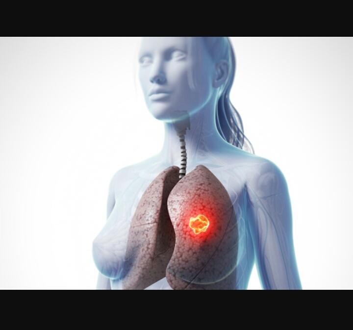 Ung thư phổi - nguy hiểm không trừ một ai