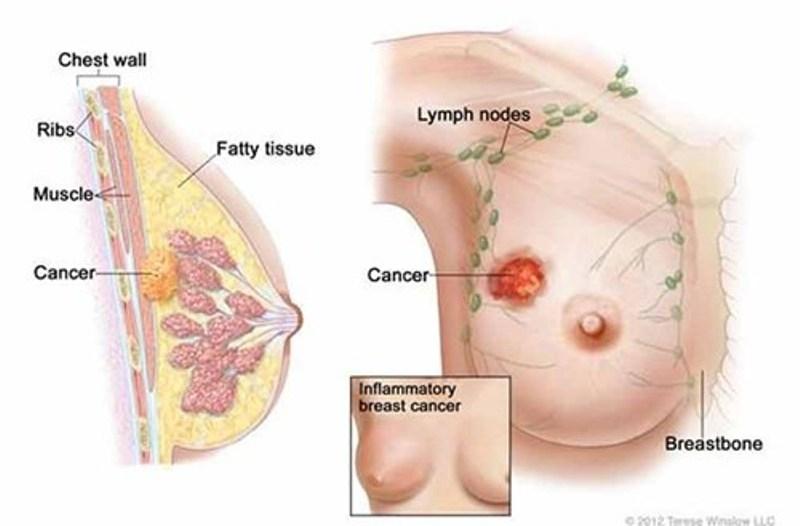 Hình ảnh khối ung thư trong vú