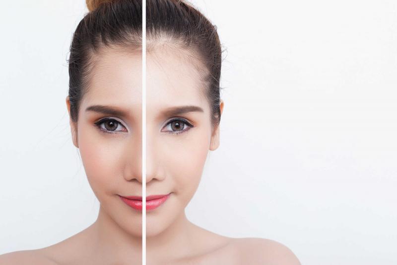 Uống nước ấm làm sáng làn da của bạn