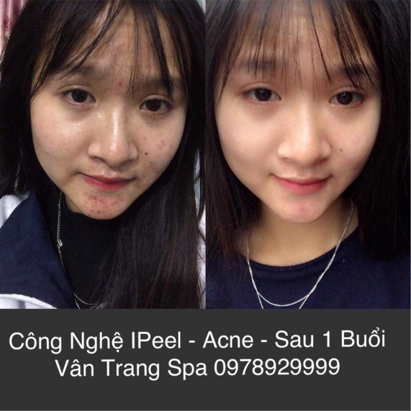 Khách hàng sau 1 buổi điều trị mụn tại Vân Trang Spa