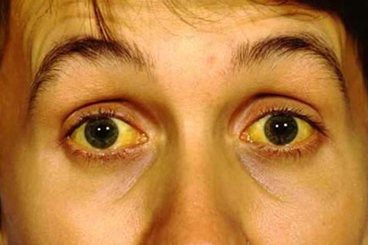 Vàng da, vàng mắt