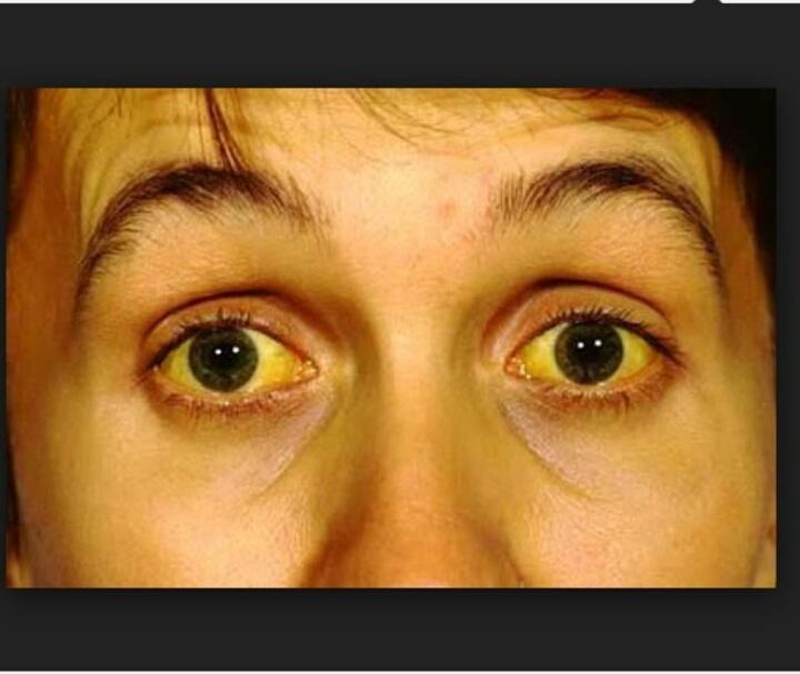 Vàng mắt - dấu hiệu cảnh báo viêm gan B điển hình