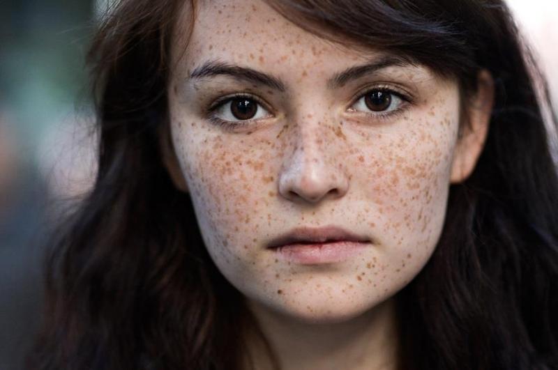Vết thâm nám xuất hiện cho thấy làn da của bạn có dấu hiệu lão hóa
