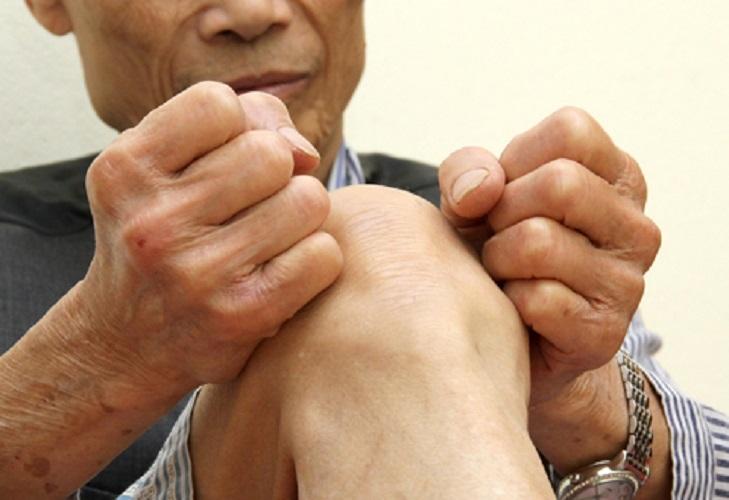 Bệnh viêm khớp nhiễm trùng