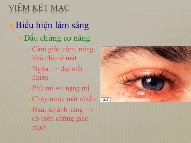 Biểu hiện của viêm kết mạc mắt