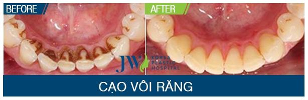 Kết quả thay đỗi rõ nét trước và sau lấy cao răng tại JW Hàn Quốc