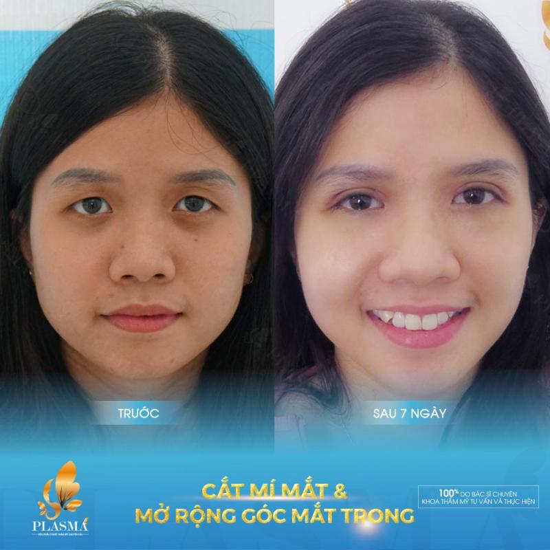 Hình ảnh trước và sau khi cắt mí tại Viện phẫu thuật thẩm mỹ Plasma