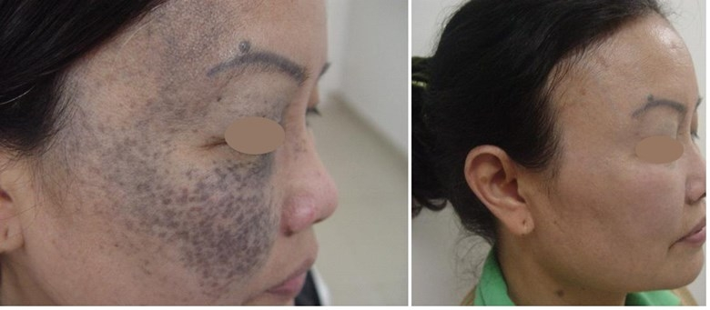 Khách hàng điều trị chàm xanh tại Viện thẩm mỹ Hà Nội