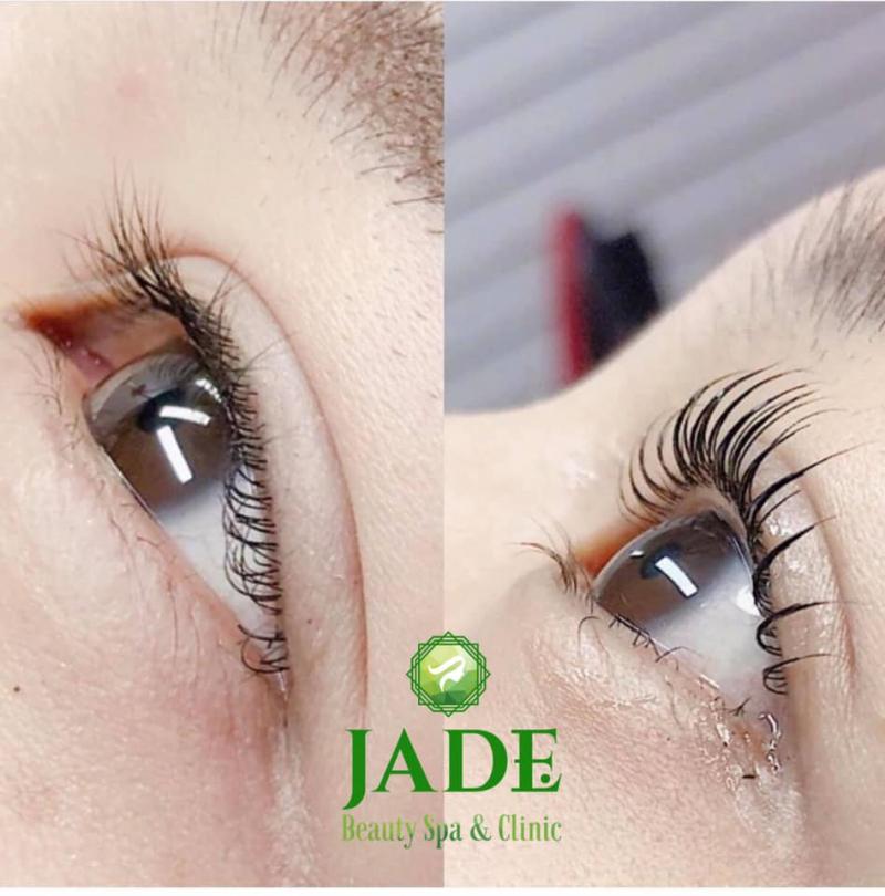 Viện Thẩm Mỹ JADE Beauty Spa & Clinic