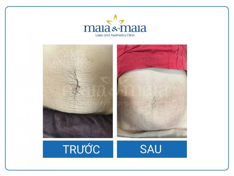 Kết quả sau điều trị tai Maia&Maia