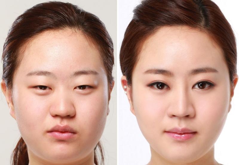Khách hàng cắt mắt hai mí tại TMV Nhật Hàn