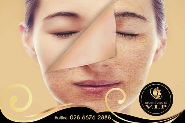 Điều trị rạn da hiệu quả cao tại V.I.P