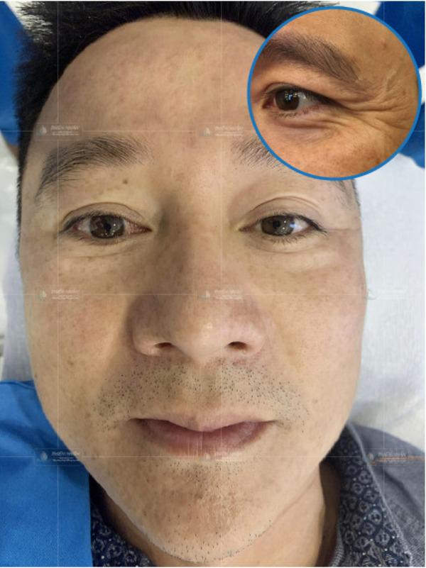 Hiệu quả từ khách hàng sau khi tiêm xóa nhăn đuôi mắt tại VTM Thiện Nhân