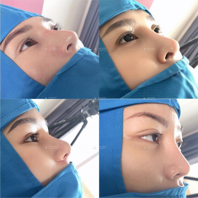 Kết quả từ khách hàng sau khi nâng mũi cấu trúc B Nose tại VTM Thiện Nhân