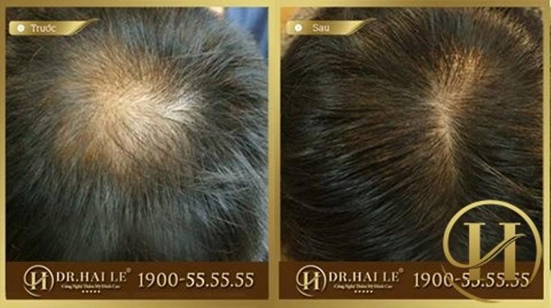 Khách hàng cấy tóc tại DR Hải Lê
