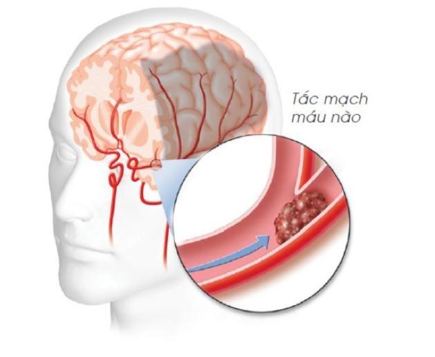 Thuốc giúp ngăn ngừa tắc mạch máu não