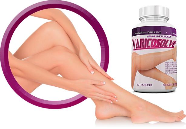 Varicosolve ngăn ngừa và hỗ trợ điều trị giãn tĩnh mạch chân